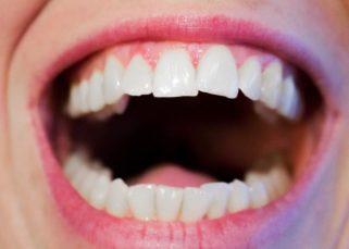 Odstranjevanje zobnega kamna s strani zobozdravstvenega strokovnjaka